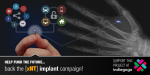 The xNT fully NFC compliant RFID implant indiegogo campaign is live!